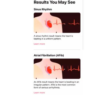 electrocardiogramas en el Apple Watch Series 4